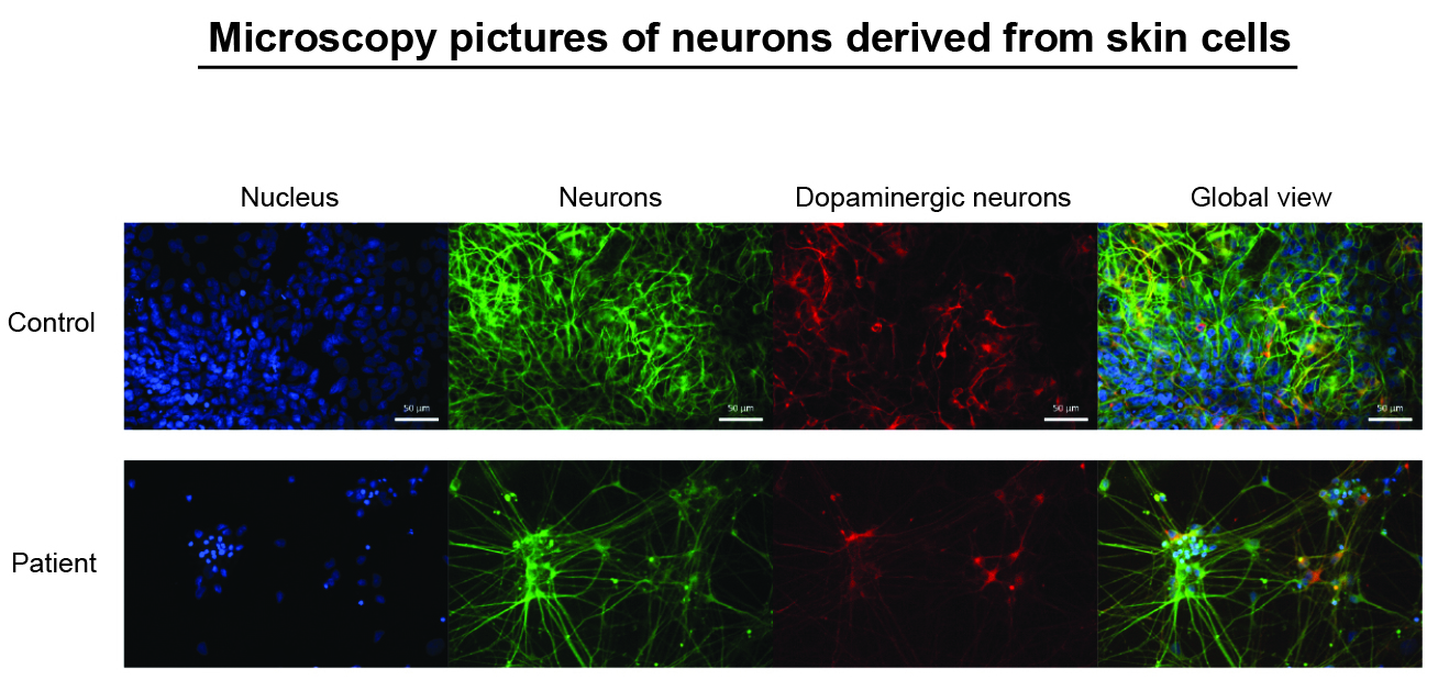 Microscopy pictures of neurones derived from skin cells
